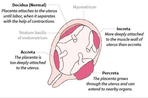 Placental accreta, increta and percreta