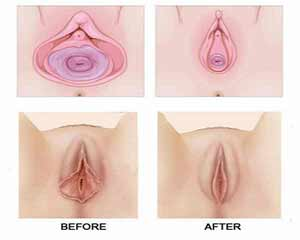 جوانسازی و درمان شل شدگی واژن بدون جراحی